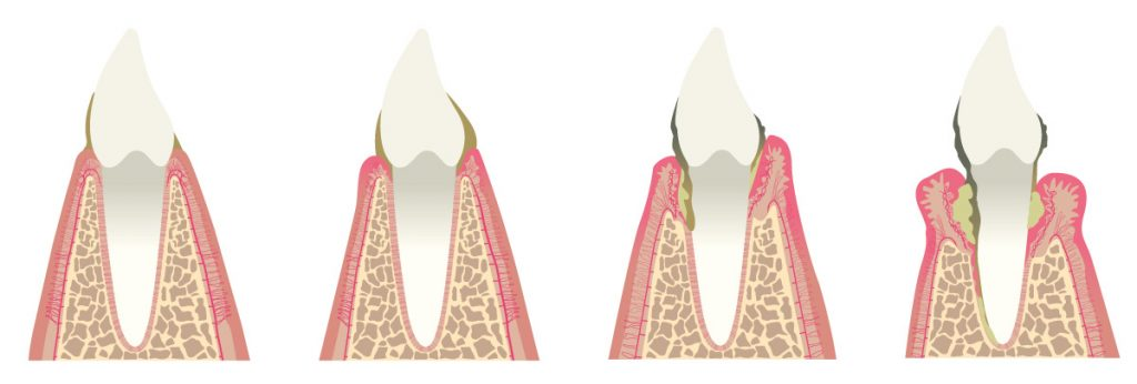 Entwicklung einer Parodontitis